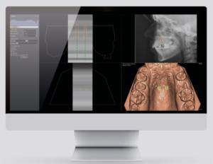 Progettazione Digitale 3D